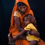 Malnourished child, Nepal